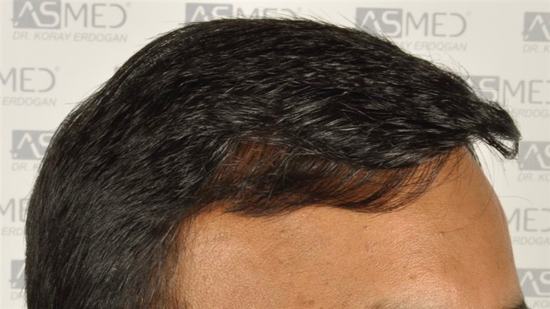 best-hair-transplant-in-turkey (13)