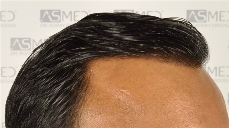 best-hair-transplant-in-turkey (14)