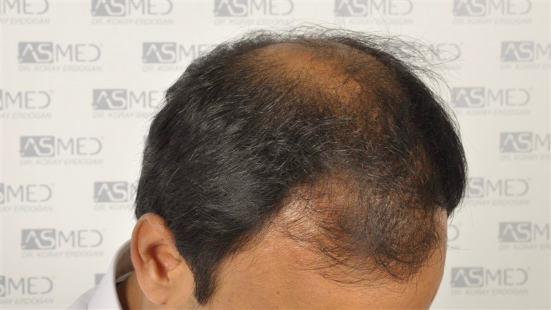 best-hair-transplant-in-turkey (15)