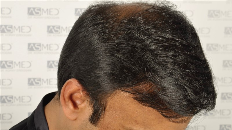 best-hair-transplant-in-turkey (18)