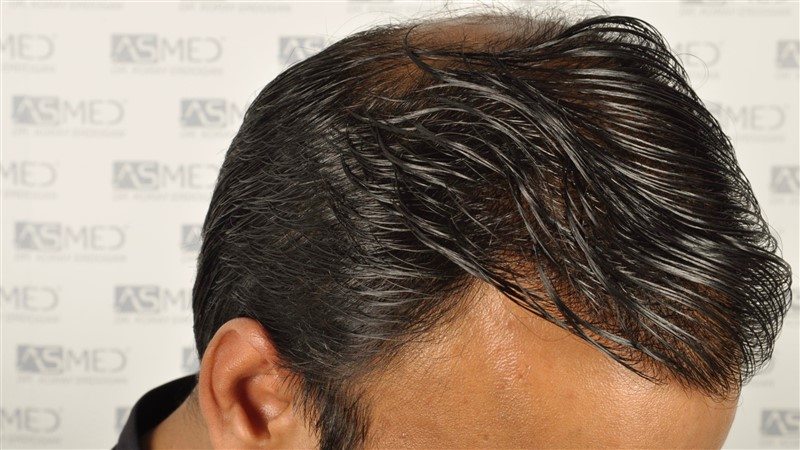 best-hair-transplant-in-turkey (19)
