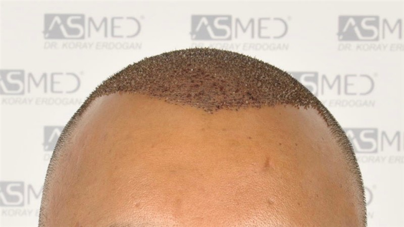 best-hair-transplant-in-turkey (2)