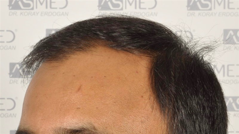 best-hair-transplant-in-turkey (20)