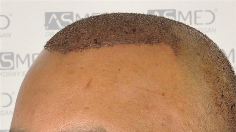 best-hair-transplant-in-turkey (22)