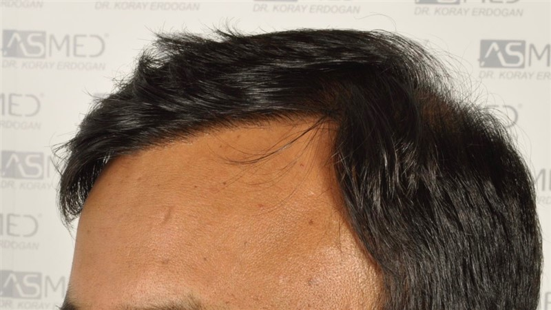 best-hair-transplant-in-turkey (23)