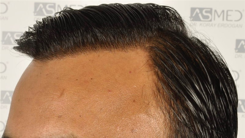 best-hair-transplant-in-turkey (24)