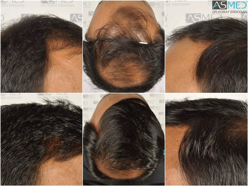 best-hair-transplant-in-turkey (27)