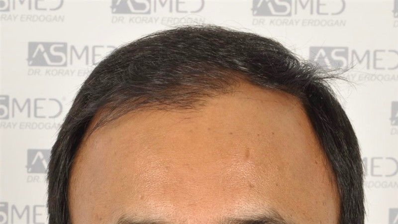 best-hair-transplant-in-turkey (28)