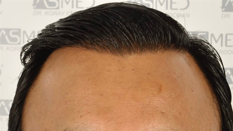 best-hair-transplant-in-turkey (4)
