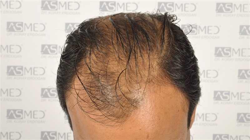 best-hair-transplant-in-turkey (6)