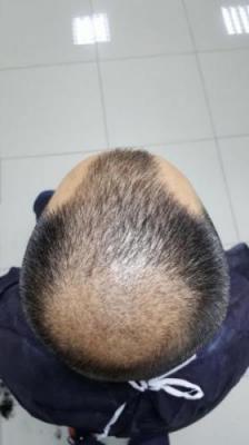 hair-transplant-in-antalya (10)
