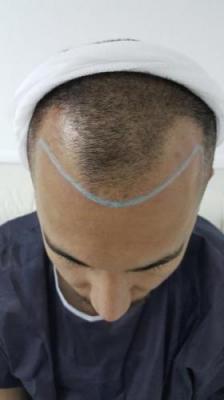 hair-transplant-in-antalya (11)