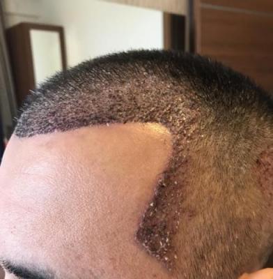 hair-transplant-in-antalya (13)