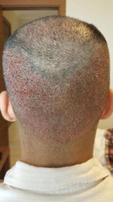 hair-transplant-in-antalya (15)