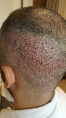 hair-transplant-in-antalya (16)