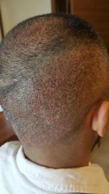 hair-transplant-in-antalya (17)