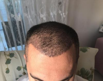 hair-transplant-in-antalya (18)