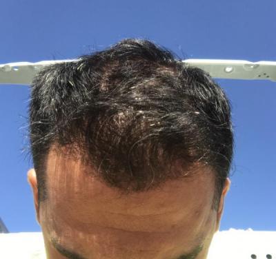 hair-transplant-in-antalya (2)
