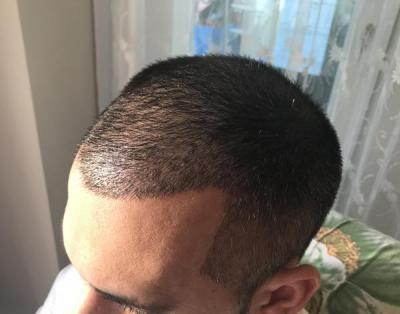 hair-transplant-in-antalya (20)