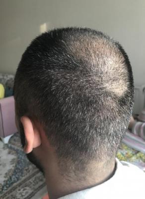hair-transplant-in-antalya (24)