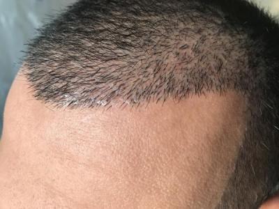 hair-transplant-in-antalya (25)