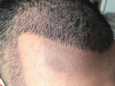 hair-transplant-in-antalya (26)