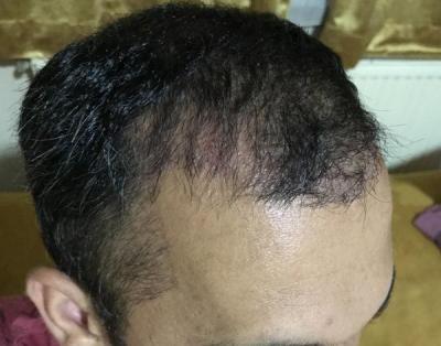 hair-transplant-in-antalya (27)