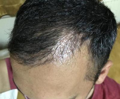 hair-transplant-in-antalya (29)