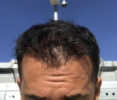 hair-transplant-in-antalya (3)