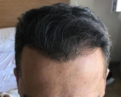 hair-transplant-in-antalya (30)