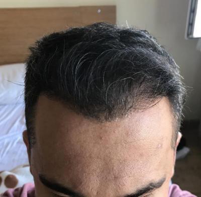 hair-transplant-in-antalya (30)