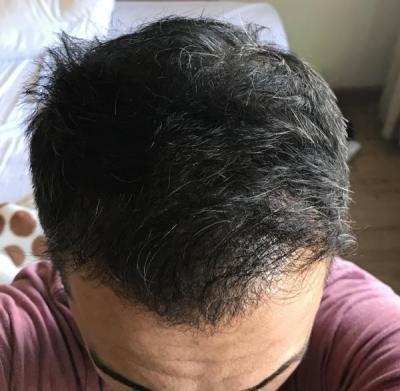 hair-transplant-in-antalya (31)