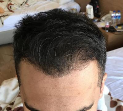 hair-transplant-in-antalya (33)