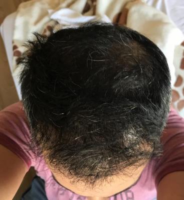 hair-transplant-in-antalya (34)
