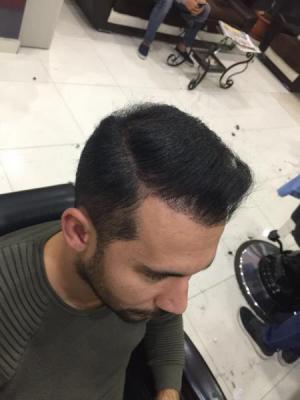 hair-transplant-in-antalya (4)