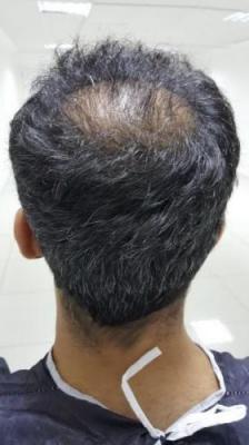 hair-transplant-in-antalya (8)