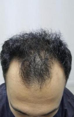 hair-transplant-in-antalya (9)
