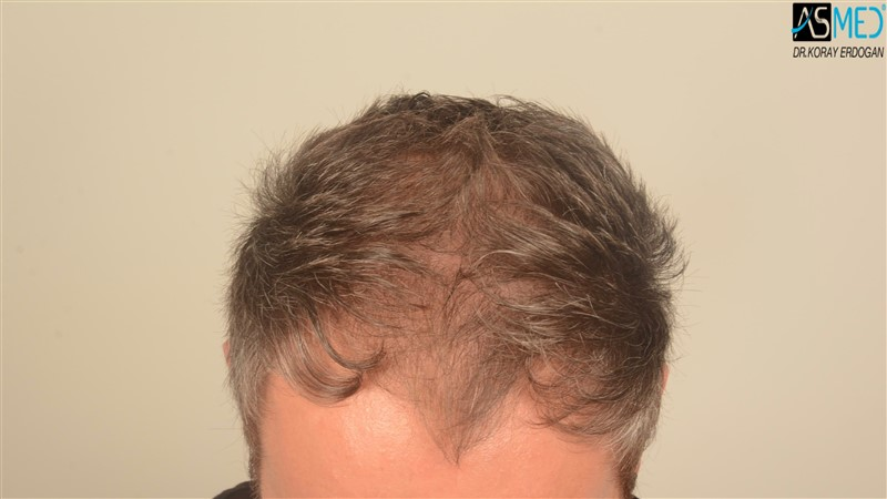 hair-transplant-in-turkey-before-and-after (1)