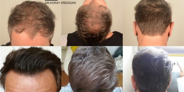 hair-transplant-in-turkey-before-and-after (10)