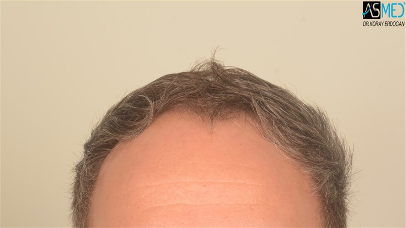 hair-transplant-in-turkey-before-and-after (11)