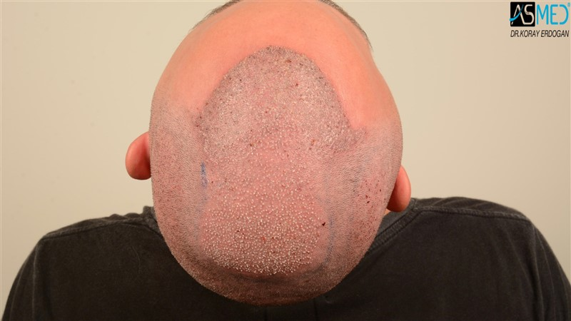 hair-transplant-in-turkey-before-and-after (5)