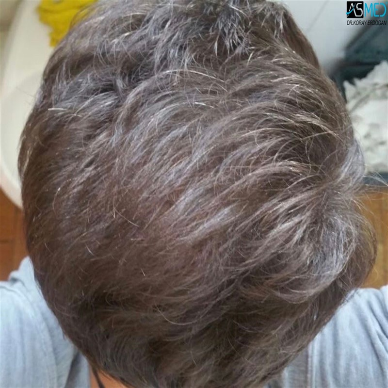 hair-transplant-in-turkey-before-and-after (6)