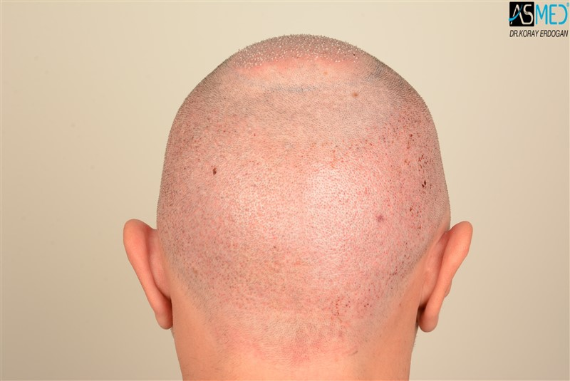 hair-transplant-in-turkey-before-and-after (8)