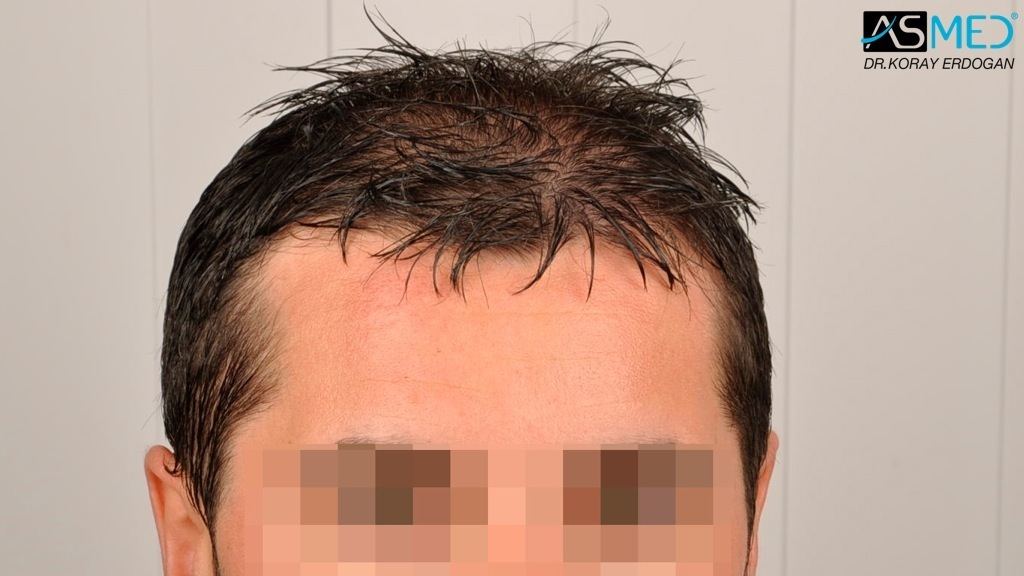 hair-transplant-turkey-asmed