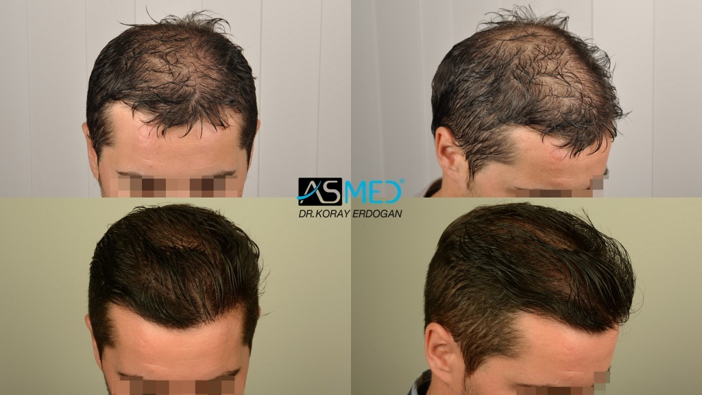 ASMED-2820 GRAFTS FUE-TURKEY