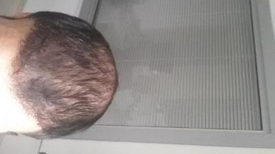 beard-hair-transplant (14)