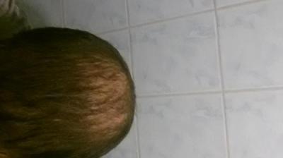 beard-hair-transplant (16)
