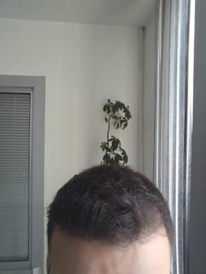 beard-hair-transplant (18)