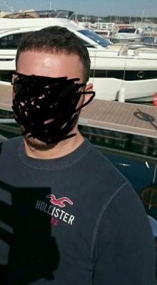 beard-hair-transplant (22)