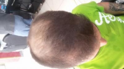 beard-hair-transplant (4)